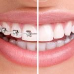 Reasons for teeth straightening
