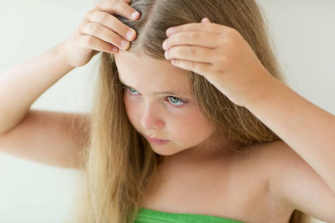 What are the causes of lice